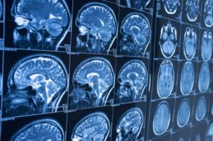 Why Do I Need an Experienced Personal Injury Lawyer to Help With My Brain Injury Claim in Fort Lauderdale?